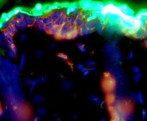 The Langerhans cells are central to the EPIT technique
